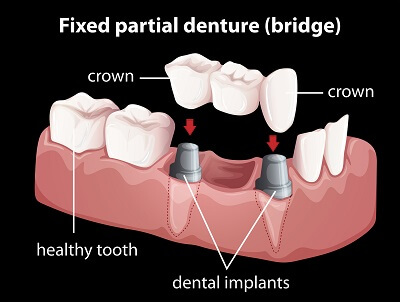 dental bridge and crown diagram
